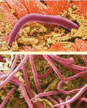очищение от паразитов домашних условиях народными