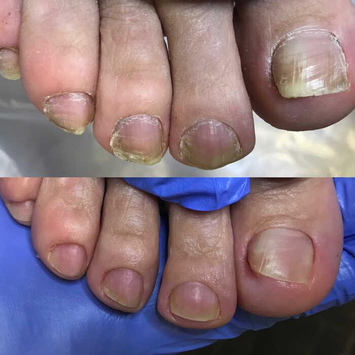 Очищение кожи и ногтей от грибка