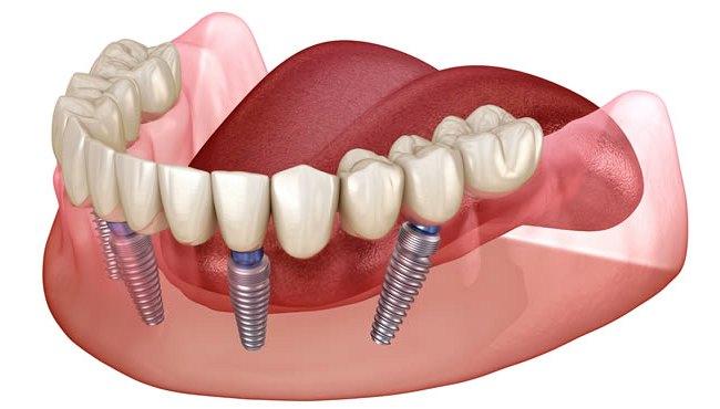 несъёмный зубной протез