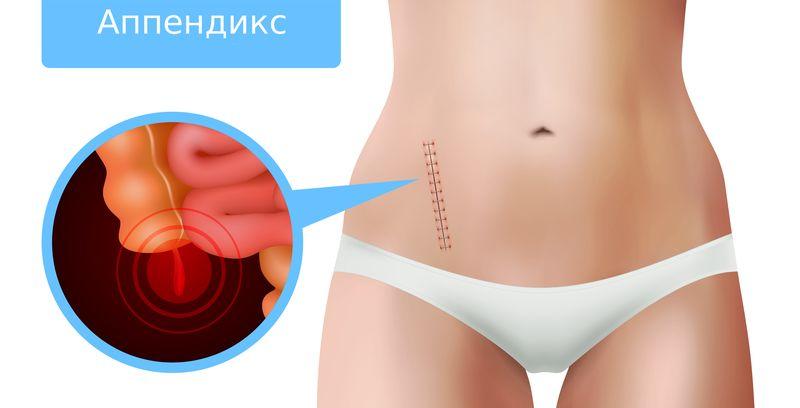 апендицит